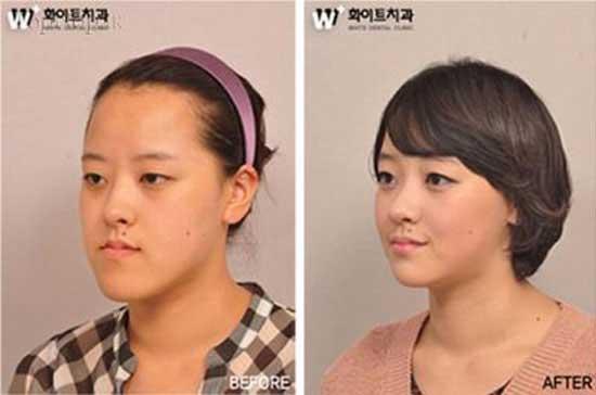 دخترانی که با جراحی زیبایی دنیایشان عوض شد + عکس