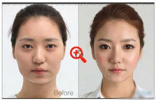 دخترانی که با جراحی زیبایی دنیایشان عوض شد همراه عکس