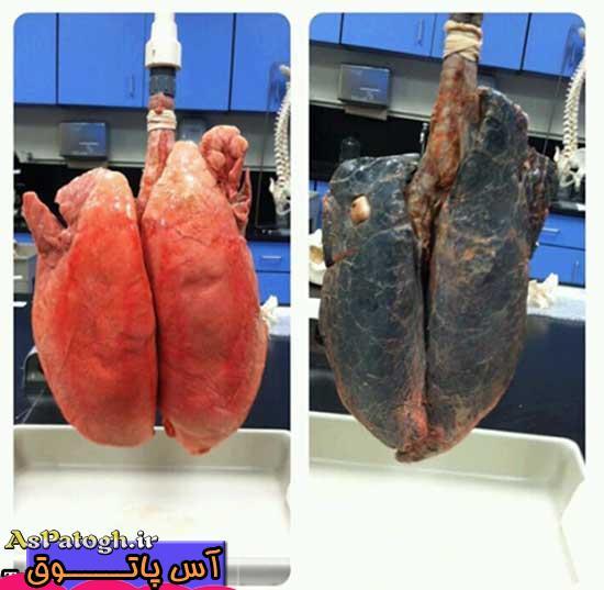 تصویری واقعی از ریه افراد سیگاری و غیر سیگاری (14+)